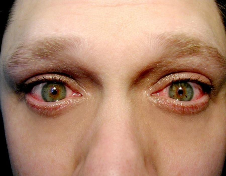 Bloodshot pussy eyes — pic 6